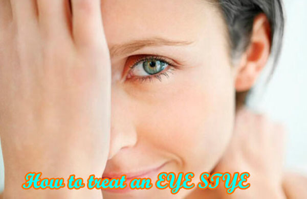 How to treat an EYE STYE!
